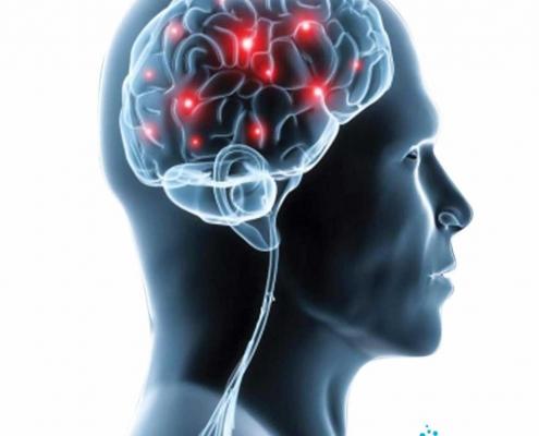 تشخیص و ارزیابی عصبی NEURO