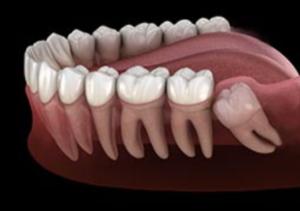 جراحی دندان عقل و غواصی